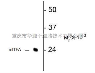 zeta电路波形图分析