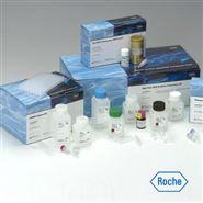 小鼠α羟基丁酸脱氢酶(αHBDH)检测试剂盒