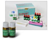 人促甲状腺素释放激素(TRH)检测试剂盒