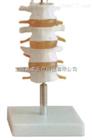 正常腰椎组合(四节)(人体骨骼模型)