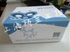 Elisa试剂盒,人干扰素调节因子(IRF)