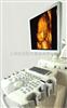 麦迪逊ACCUVIX V10高档实用耐用的超声成像系统(钻石版)